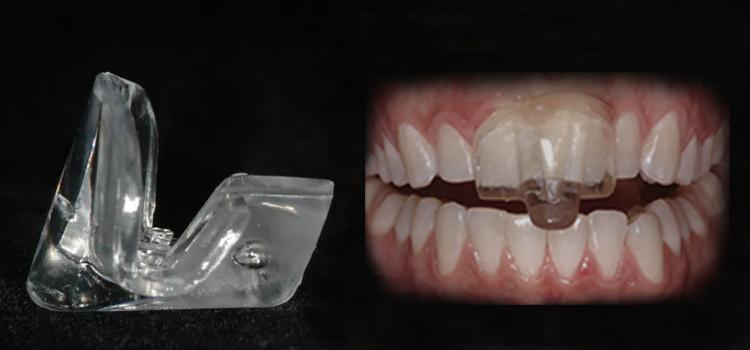 Nti Night Guard Pro Teeth Guard
